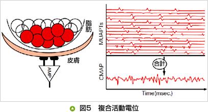 図5 複合活動電位